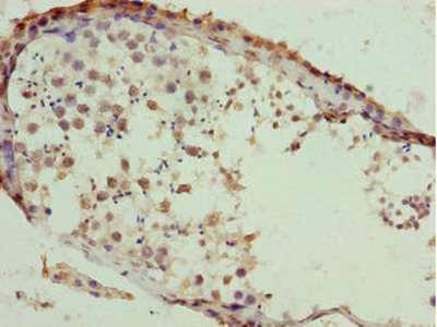 SLC26A8 Antibody