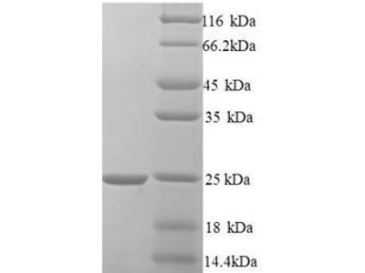 Recombinant Human Hematological and neurological expressed 1 protein(HN1) (Yeast)
