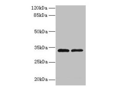 TMEM71 Antibody