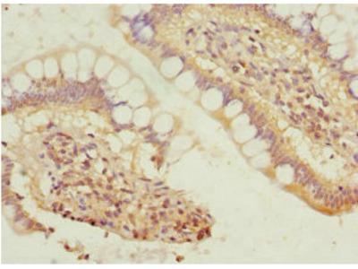 SIVA1 Antibody