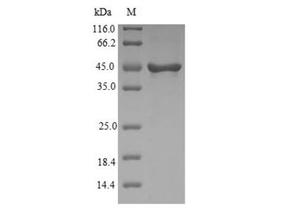 Recombinant Human Visinin-like protein 1(VSNL1) (E.coli)
