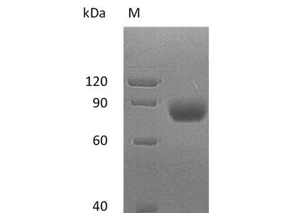 Recombinant Human MHC class I polypeptide-related sequence A(MICA),partial (Active) (Mammalian cell)