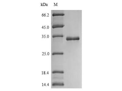 Recombinant Human Protein S100-A14(S100A14) (Yeast)