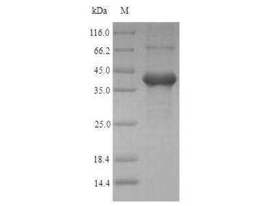 Recombinant Human Amelogenin, X isoform(AMELX) (E.coli)