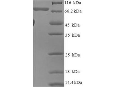 Recombinant Human RAC-beta serine/threonine-protein kinase(AKT2) (E.coli)