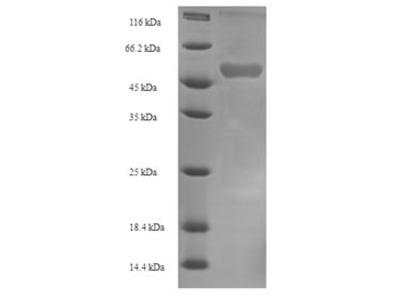 Recombinant Human NADPH:adrenodoxin oxidoreductase, mitochondrial(FDXR) (E.coli)
