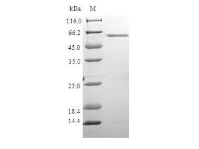 Recombinant Human DNA repair protein XRCC4(XRCC4) (E.coli)