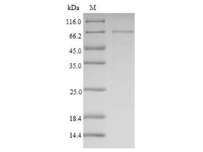 Recombinant Human Semenogelin-1(SEMG1)