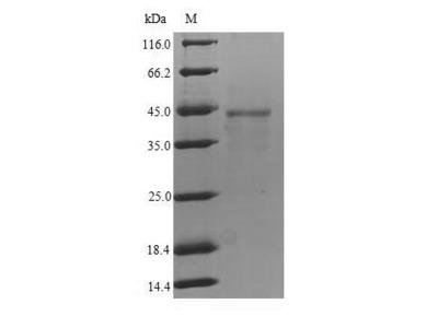 Recombinant Human Fc receptor-like protein 4 (FCRL4)  (Mammalian cell)