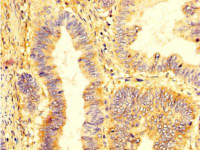 KIR2DL1 Antibody