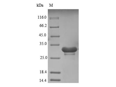 Recombinant Human U1 small nuclear ribonucleoprotein 70 kDa(SNRNP70),partial