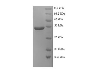 Recombinant Human Probable G-protein coupled receptor 75(GPR75),partial (E.coli)