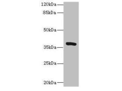 TMEM64 Antibody