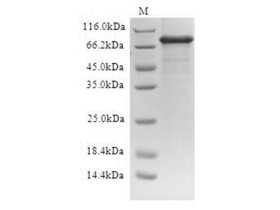 Recombinant Human ATP-binding cassette sub-family D member 1(ABCD1) (Active) (in vitro E.coli expression system) (Full Length)