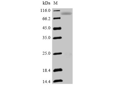 Recombinant Human Semaphorin-3F(SEMA3F)
