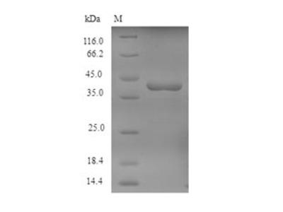 Recombinant Human Tyrosine-protein kinase JAK1(Jak1),partial (E.coli)