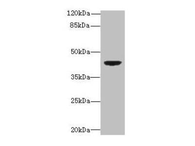 DAPK2 Antibody