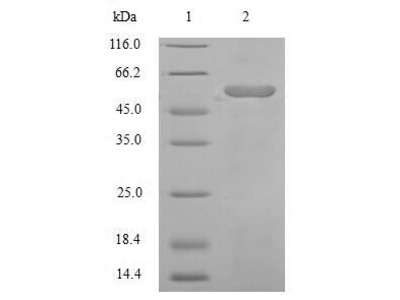 Recombinant Human Angiotensinogen(AGT),partial