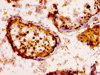KSR2 Antibody