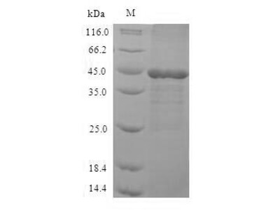 Recombinant Human Mitogen-activated protein kinase 3(MAPK3),partial (E.coli)