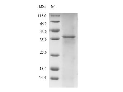 Recombinant Human Titin(TTN),partial (E.coli)