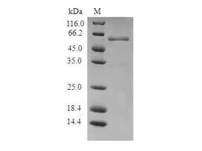 Recombinant Human Proteasome activator complex subunit 1(PSME1) (E.coli)