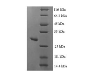 Recombinant Human Mitochondrial peptide methionine sulfoxide reductase(MSRA) (E.coli)