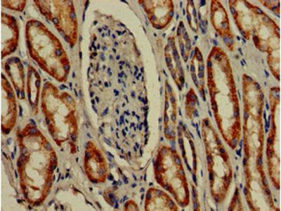 TMIGD2 Antibody