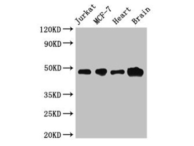 CBLL2 Antibody