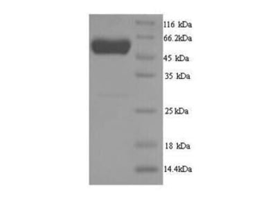 Recombinant Danio rerio D-2-hydroxyglutaRate dehydrogenase, mitochondrial(d2hgdh)