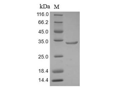 Recombinant Human AT-rich interactive domain-containing protein 1A(ARID1A),partial (Baculovirus)