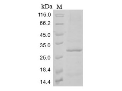 Recombinant Mouse C-type lectin domain family 12 member A(Clec12a),partial (Baculovirus)