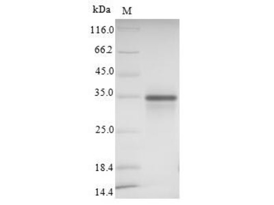 Recombinant Human Sialic acid-binding Ig-like lectin 15 (SIGLEC15),partial