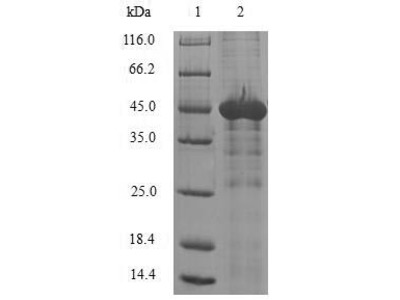 Recombinant Human N-alpha-acetyltransferase 50(NAA50) (E.coli)