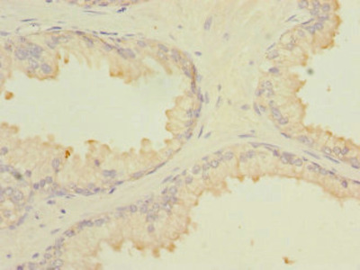 MARCKSL1 Antibody