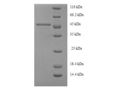 Recombinant Human Serine--pyruvate aminotransferase(AGXT) (E.coli)