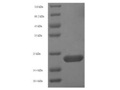 Recombinant Human Aquaporin-4(AQP4),partial (E.coli)