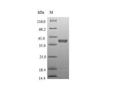 Recombinant Mouse Anthrax toxin receptor 1(Antxr1),partial (E.coli)