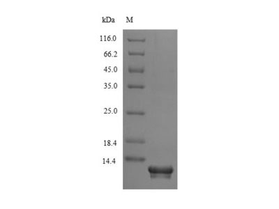 Recombinant Human Secreted Ly-6/uPAR-related protein 1(SLURP1) (E.coli)