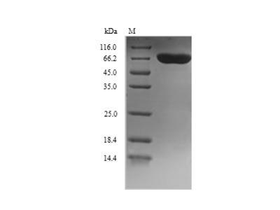 Recombinant Human Dopamine beta-hydroxylase(DBH),partial (Yeast)