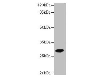 PIP4P2 Antibody