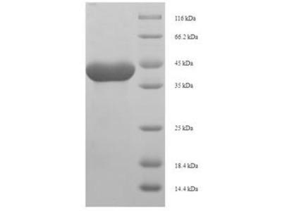 Recombinant Rat Anionic trypsin-1(Prss1)