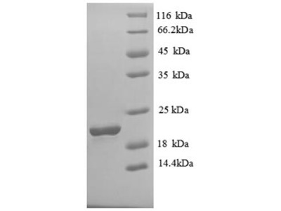Recombinant Human Solute carrier family 41 member 2(SLC41A2),partial (E.coli)