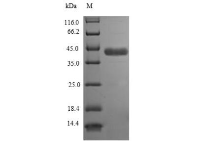 Recombinant Human Aspartoacylase(ASPA) (E.coli)