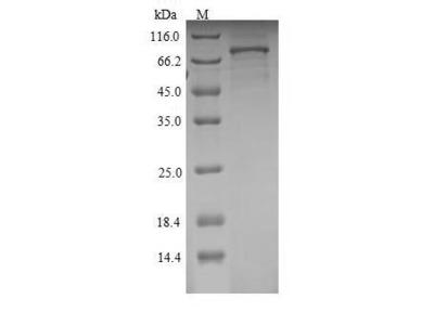 Recombinant Rat Semaphorin-3A(Sema3a)