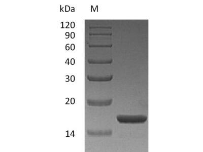 Recombinant Human Interleukin-1 alpha(IL1A) (Active) (E.coli)