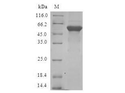 Recombinant Human Transcription factor E2F6(E2F6) (E.coli)
