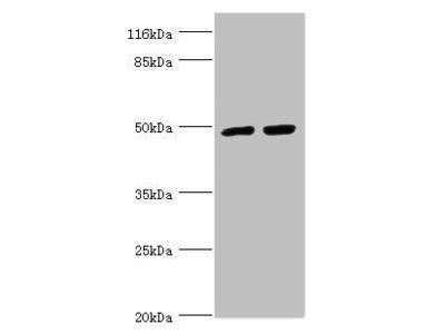 TRIM13 Antibody