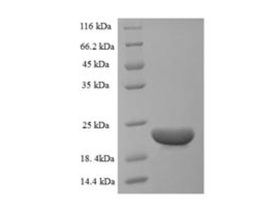 Recombinant Bovine C-C motif chemokine 20(CCL20) (E.coli)