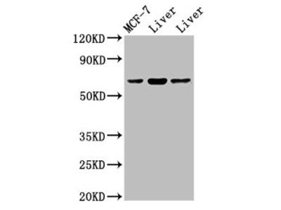 PTH1R Antibody